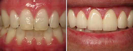 Something is. photos shaved teeth for porceline veneers something is
