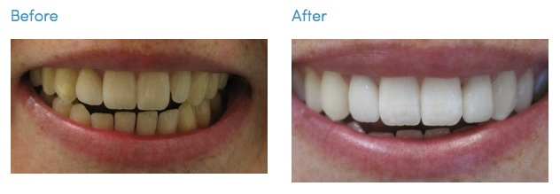 Teeth Whitening Cosmetic Dentistry Los Angeles South Bay Smiles