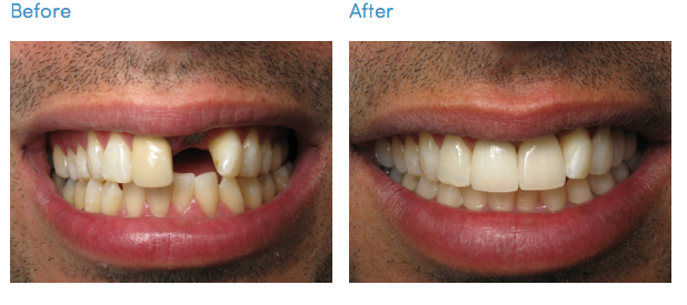 Implant Restorations Los Angeles