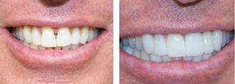 Marina del Rey Cosmetic Dentist