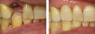 Redondo Beach Cosmetic Dentist